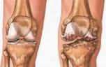 Bệnh đau khớp gối – Nguyên nhân và triệu chứng