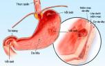 Nguyên nhân triệu chứng viêm loét dạ dày