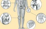 Phân biệt các loại viêm khớp Bệnh đau khớp