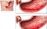 Phân biệt bệnh đau dạ dày cấp tính và mãn tính Viêm loét dạ dày