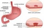 Viêm loét dạ dày: Những biến chứng nguy hiểm Viêm loét dạ dày