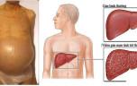 Thuốc điều trị xơ gan cổ trướng hiệu quả Bệnh xơ gan