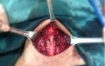 Ung thư tuyến giáp di căn hạch cổ