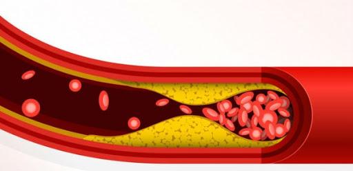 toan tap ve cholesterol 5